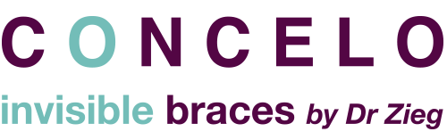 Concelo Invisible Braces