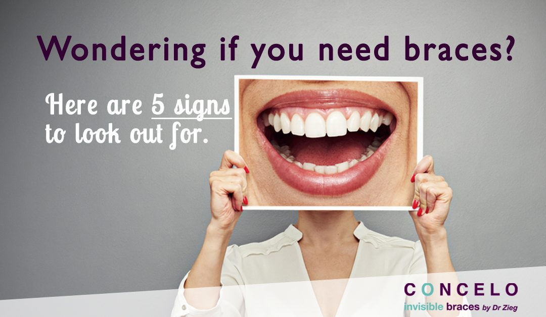 Wondering if you need braces?