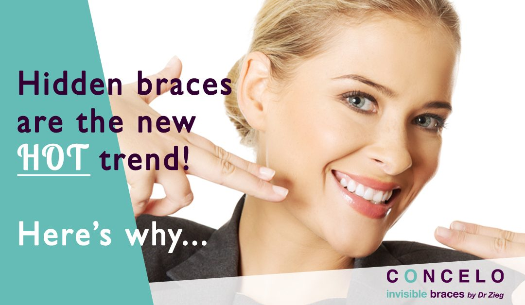 Hidden braces are the new hot trend! Here's why…